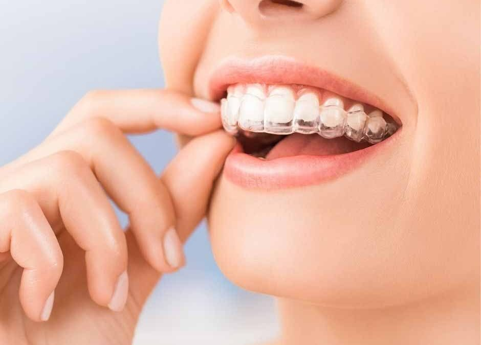 What Foods Should I Avoid During Invisalign Treatment in Blackburn