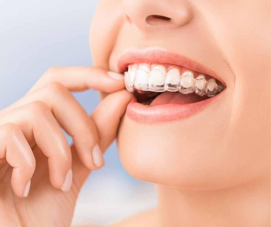 What Foods Should I Avoid During Invisalign Treatment
